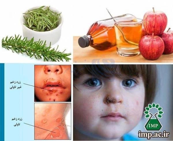 🔺 گیاهان دارویی موثر در درمان بیماری زرد زخم